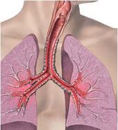 salud-pulmones.jpg