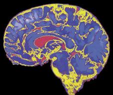 salud-cerebro.jpg