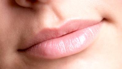 labios secos agrietados