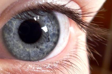 ojo glaucoma