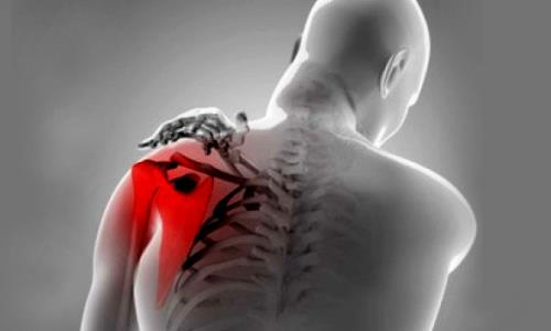 Lesiones hombro